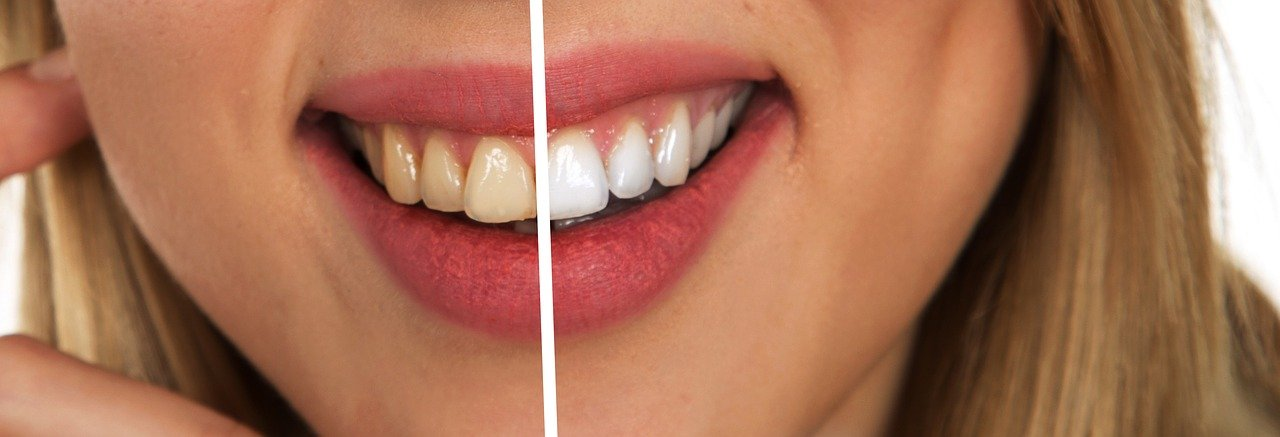 teeth and before after
